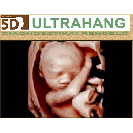 Human 5D Ultrahang Diagnosztikai Rendelő